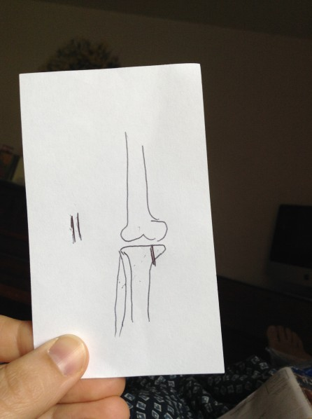 sketch of tibia fracture